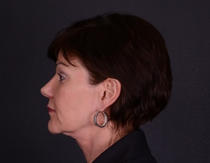 Nose Reshaping (Rhinoplasty) | Centre for Plastic Surgery